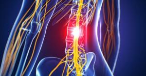 腰痛多因椎間盤突出 減壓床加衝擊波治療